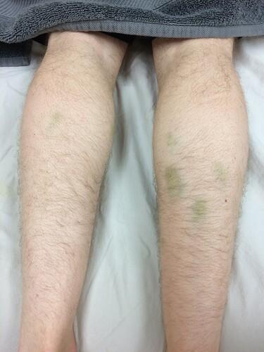 Bruises 1